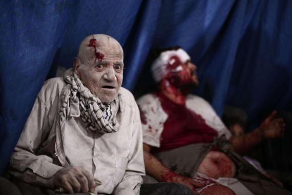 Juan Carlos I.aren bikoitza ematen du Siriako errefuxiatu zauritu honek